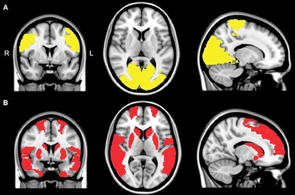 Imagen: Las imágenes de resonancia magnética (RM) muestran una reducción de la conectividad funcional regional en los pacientes con enfermedad de Parkinson (A), y en los pacientes con Parkinson, así como en pacientes con alucinaciones visuales (B) (Fotografía cortesía de la RSNA).