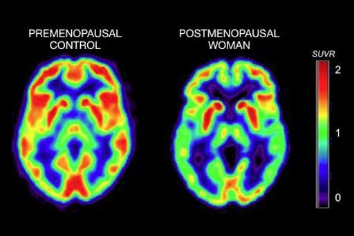 Imagen: El examen TEP de la izquierda muestra la actividad cerebral en una mujer premenopáusica, mientras que el examen de la derecha muestra la actividad cerebral en una mujer posmenopáusica (Fotografía cortesía de WCM).