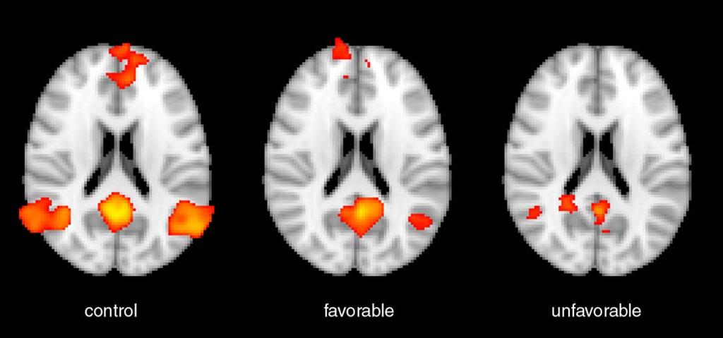 Imagen: Las imágenes muestran un examen de resonancia magnética funcional de un individuo control saludable a la izquierda; un examen de un paciente después de un paro cardíaco con un buen resultado funcional en el medio; y un paciente con paro cardíaco con un mal resultado funcional a la derecha (Fotografía cortesía de la RSNA).