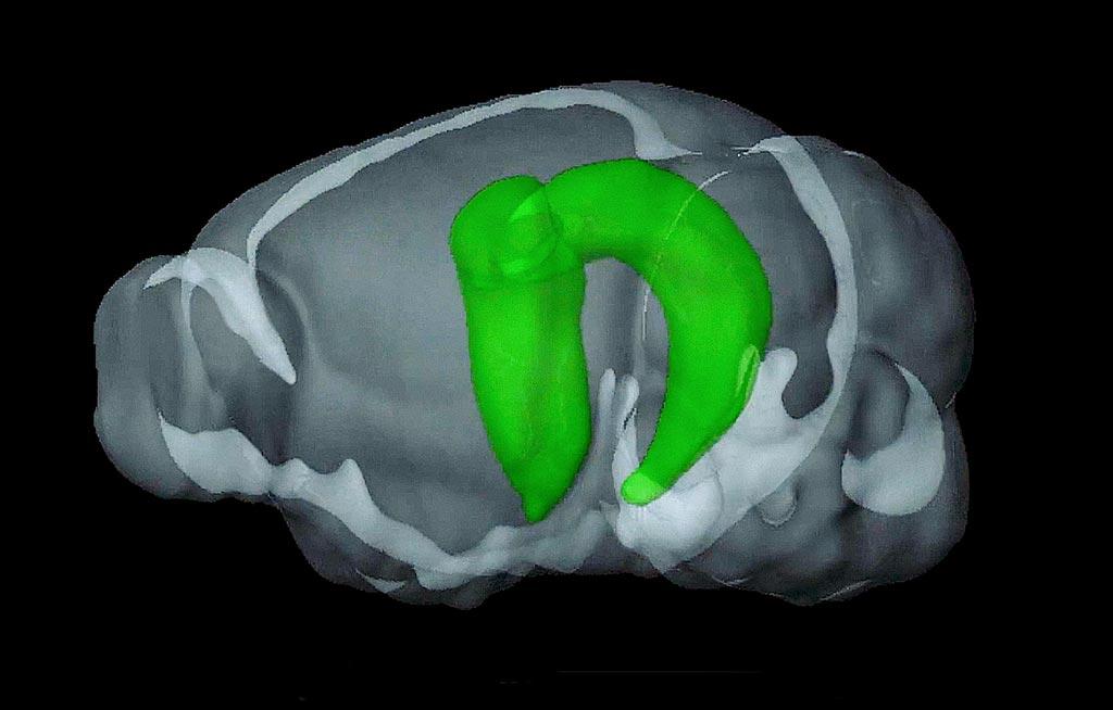 Imagen: los investigadores han revelado nuevos conocimientos sobre el papel del hipocampo en las redes cerebrales complejas (Fotografía cortesía de la Universidad de Hong Kong).