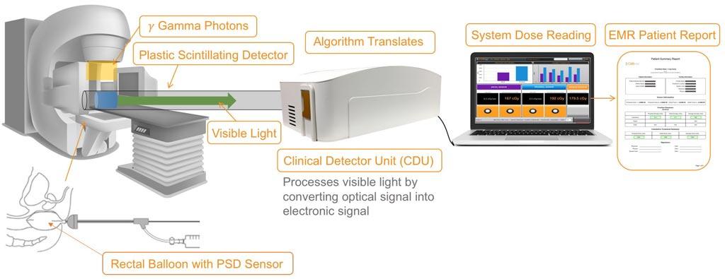 Imagen: Un sistema óptico mide y valida las dosis de radiación (Fotografía cortesía de RadiaDyne).