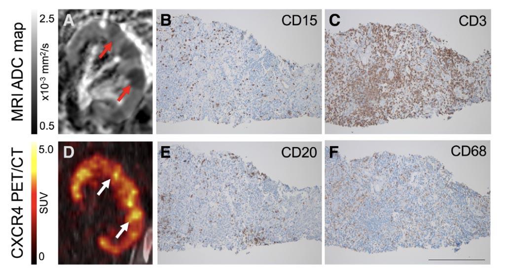 Imagen: una resonancia magnética que muestra la restricción focal de la difusión (A), con la expresión correspondiente de la regulación positiva de CXCR4 (Fotografía cortesía de la Facultad de Medicina de Hannover).