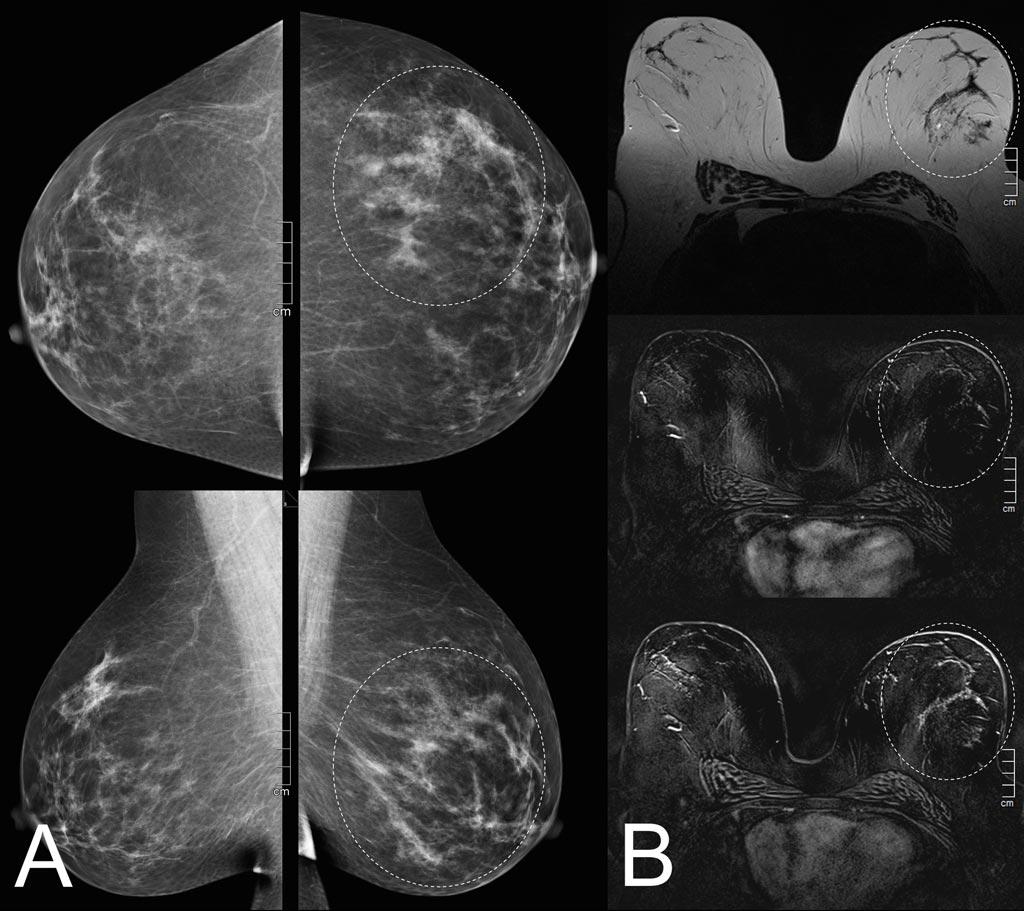 Imagen: La mamografía (A) y la resonancia magnética (B) revelan que un hallazgo sospechoso es solo una mejora leve del fondo (Fotografía cortesía de MedUni).
