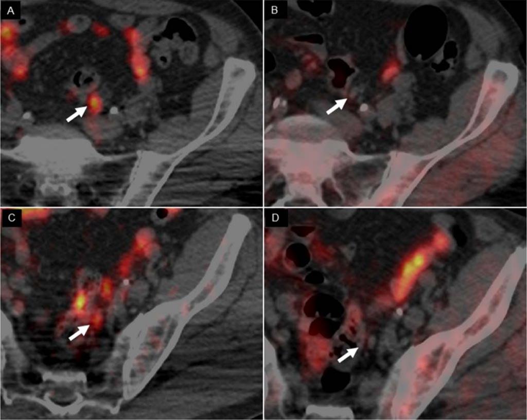 Imagen: Las imágenes de la TEP/TC con 64CuCl2, revelan dos ganglios linfáticos pequeños positivos (A, C), mientras que la TEP/TC con 18F-Colina (B, D) no los muestra (Fotografía cortesía de Arnoldo Piccardo/Hospital Galliera).
