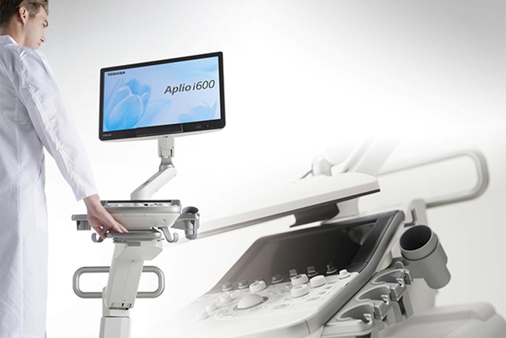 Imagen: El sistema de ultrasonido Apolo i600 de nivel de entrada (Fotografía cortesía de Canon Medical Systems).