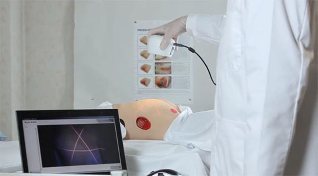 Imagen: Un sistema basado en cámara proporciona mediciones exactas de las heridas (Fotografía cortesía de ARANZ Medical).