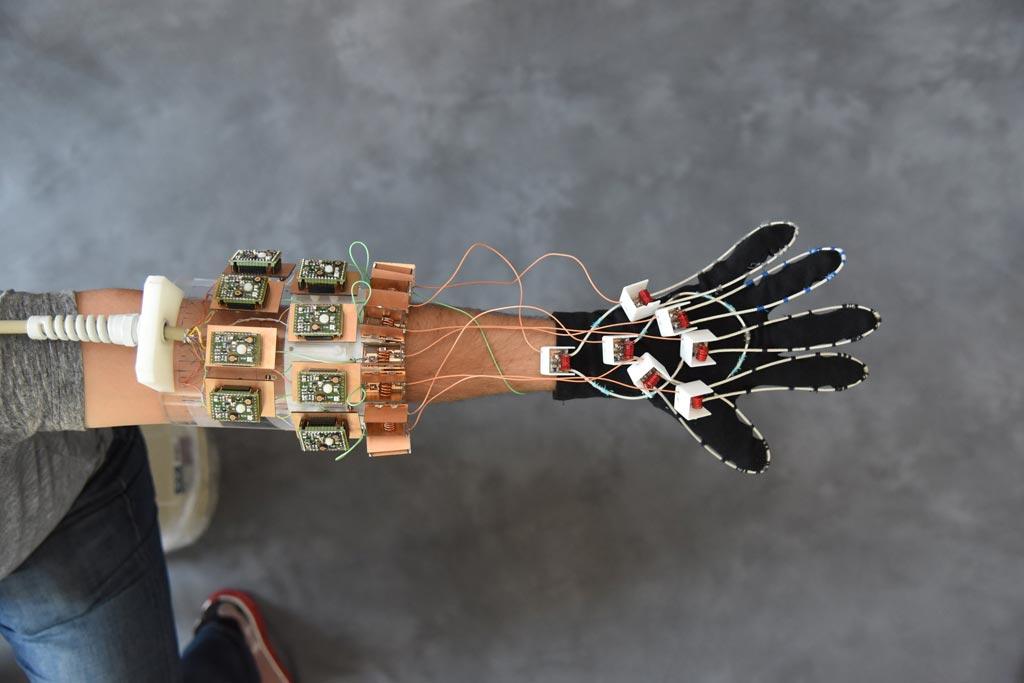 Imagen: El guante portátil para RM diseñado para visualizar articulaciones móviles y ayudar a diagnosticar las lesiones por esfuerzo repetitivo (Fotografía cortesía de NYU Langone).