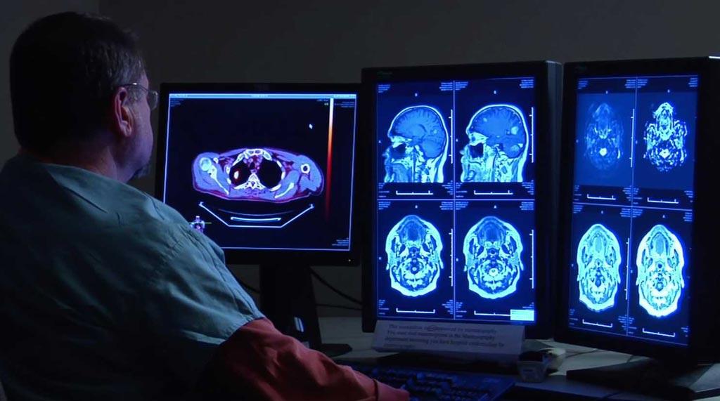 Imagen: Un nuevo estudio sugiere que las tomografías computarizadas corrientes pueden ser suficientes para determinar las necesidades de trombectomía (Fotografía cortesía de Getty Images).
