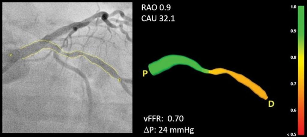 Imagen: Una representación en 3D del vaso sanguíneo con una escala de colores que indica el valor de vFFR (Fotografía cortesía de Pie Medical Imaging).