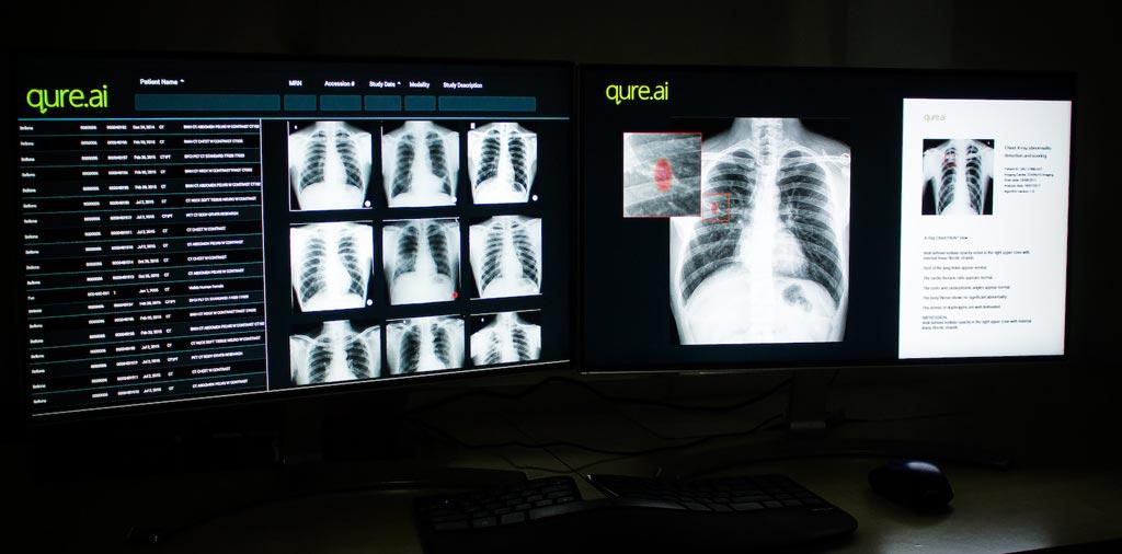 Imagen: La herramienta de interpretación de radiografía de tórax, basada en IA, qXR, ha recibido la certificación CE (Fotografía cortesía de Qure.ai).