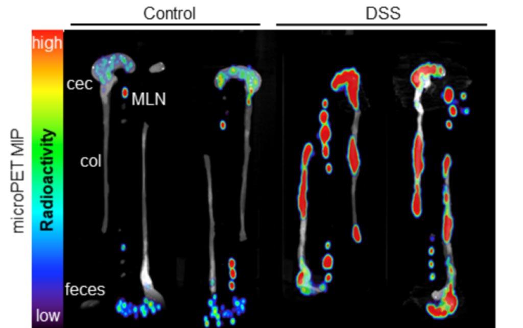 Imágenes ex vivo del colon, el ciego y los ganglios linfáticos mesentéricos tomadas a través de la plataforma inmunoPET (Fotografía cortesía de la UCLA).