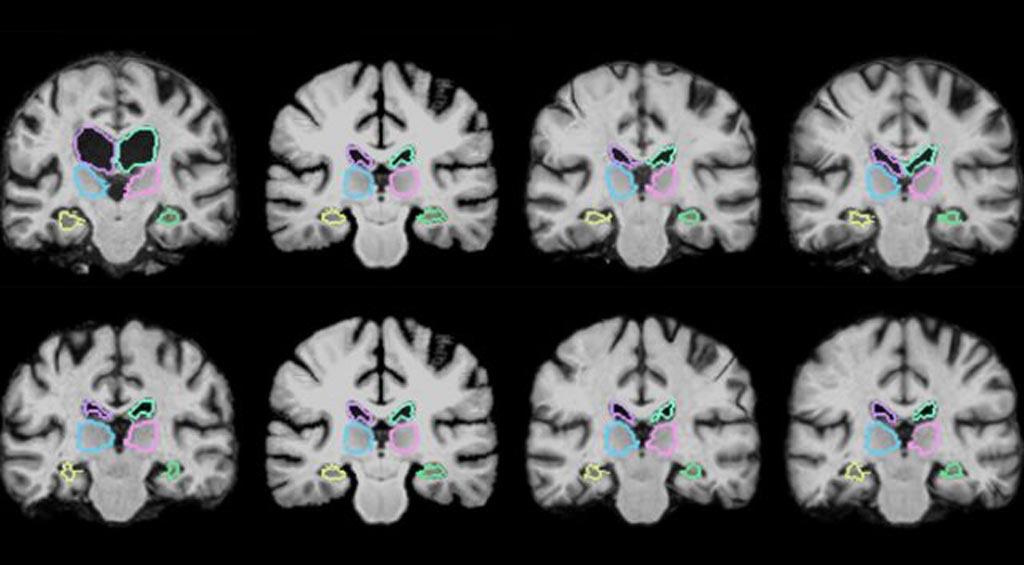 Imagen: El algoritmo VoxelMorph permite el registro de los exámenes cerebrales y de otras imágenes en 3D más de 1.000 veces más rápido usando técnicas de aprendizaje novedosas (Fotografía cortesía del MIT).