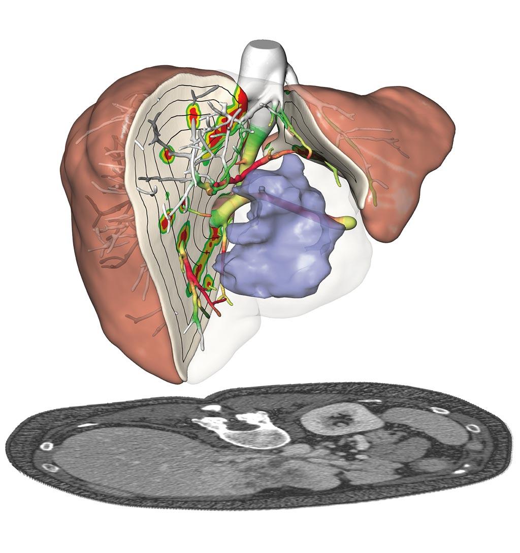 Imagen: Unos nuevos algoritmos analizan los datos de imágenes de los pacientes y calculan los riesgos quirúrgicos, lo que hace que la cirugía de cáncer de hígado sea más segura (Fotografía cortesía del Instituto Fraunhofer para Computación de Imágenes Médicas MEVIS).