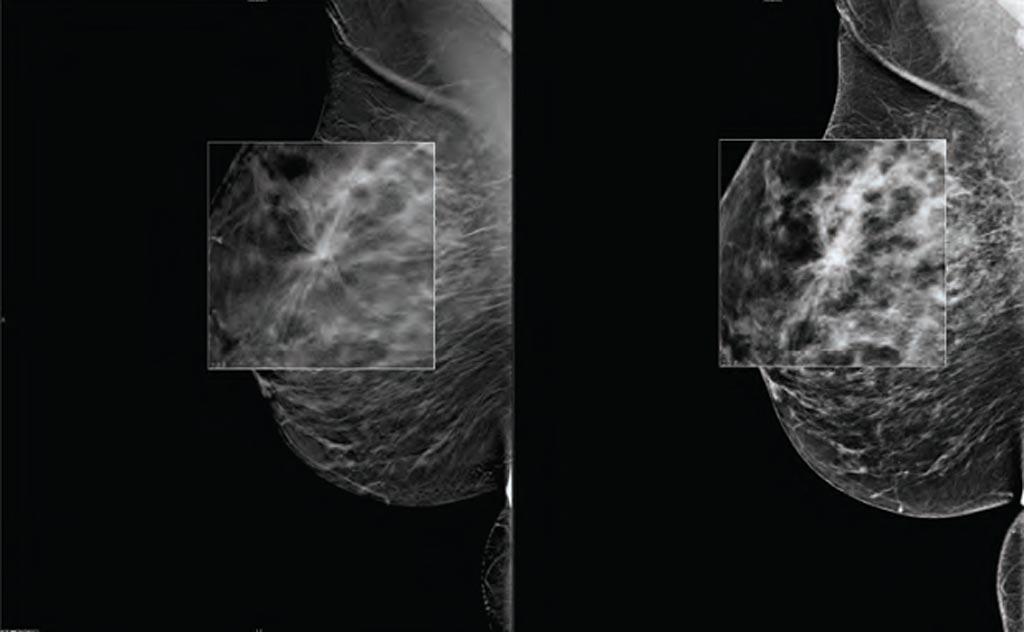 Imagen: Un nuevo estudio afirma que la TDM puede aumentar las tasas de detección del cáncer de mama (Fotografía cortesía de Carestream Health).