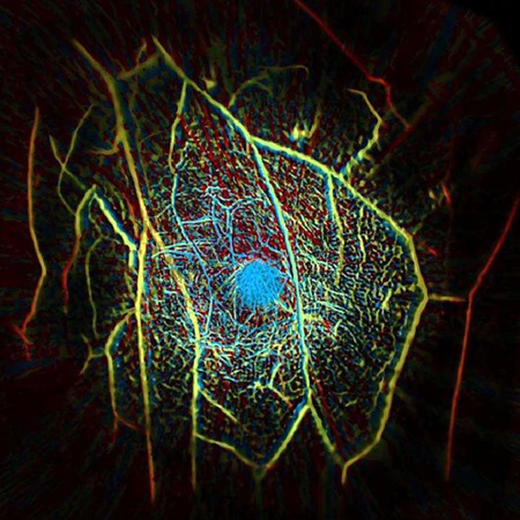 Imagen: Estructura vascular interna de mama creado con un escáner PACT (Fotografía cortesía de Caltech).