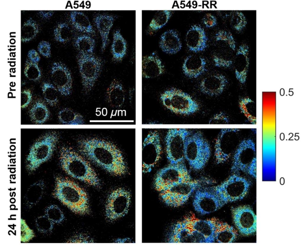 Imagen: Cambios en el metabolismo celular reflejados en las imágenes de autofluorescencia (Fotografía cortesía de la Universidad de Arkansas).