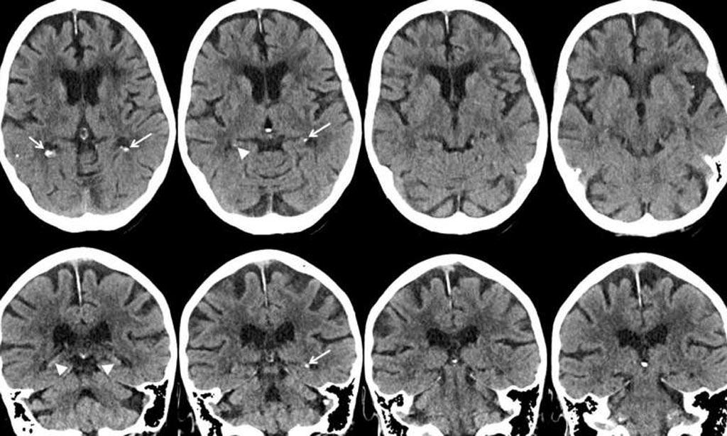 Imagen: Las imágenes axiales y coronales con la TC muestran calcificación leve del hipocampo (flechas) (Fotografía cortesía de la RSNA).