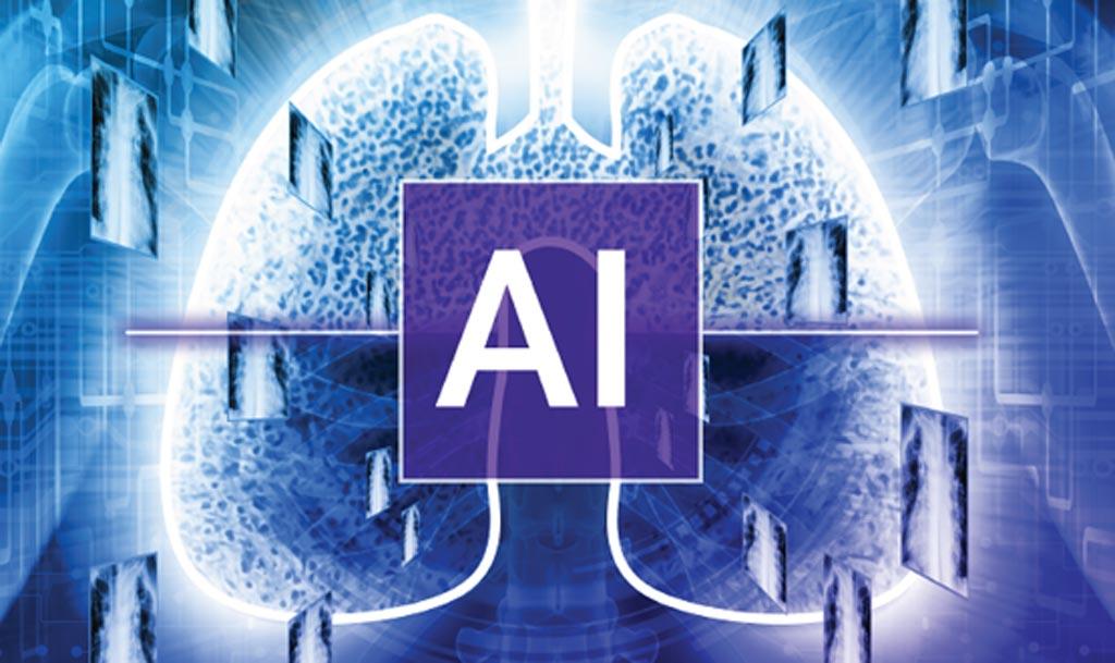 Imagen: Qure.ai, Teleradiology Solutions y Telerad Tech se han asociado para permitir diagnósticos más inteligentes y más rápidos de los datos de rayos X y de tomografía computarizada y para reducir los costos (Fotografía cortesía de iStock).