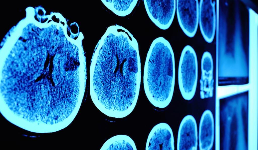 Imagen: El Centro Clínico de los NIH ha lanzado DeepLesion, un conjunto de datos a gran escala con más de 32.000 lesiones anotadas identificadas, en un esfuerzo por ayudar a mejorar la exactitud de detección de las lesiones (Fotografía cortesía de ThinkStock).