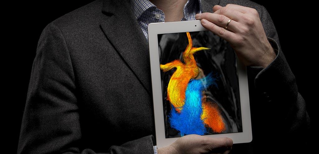 Imagen: Ahora se pueden derivar los patrones de flujo cardíaco usando únicamente la TC (Fotografía cortesía de Oscar Luren/LiU).