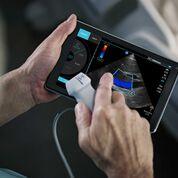 Imagen: El dispositivo portátil de ultrasonido iViz (Fotografía cortesía de Fujifilm SonoSite).