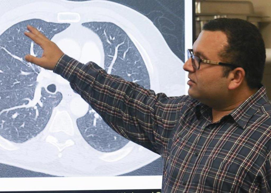 Imagen: El Profesor Asistente Ulas Bagci dirige el grupo de ingenieros de la Universidad de Florida Central que le enseñó a una computadora a detectar pequeñas manchas de cáncer en las tomografías computarizadas de pulmón, que los radiólogos a menudo tienen dificultades para identificar. El equipo dijo que el sistema de inteligencia artificial tiene una exactitud de aproximadamente el 95%, en comparación con el 65% cuando lo hacen los ojos humanos (Fotografía cortesía de la Universidad de Florida Central, Karen Norum).
