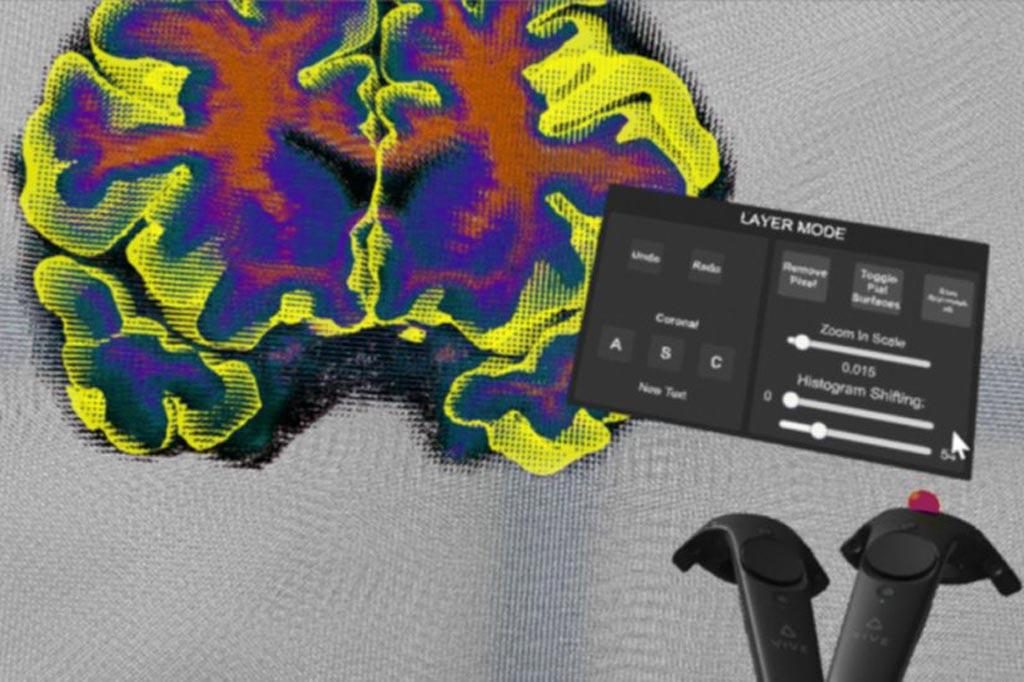 Imagen: El Segmentador Cerebral Virtual podría aumentar la eficiencia del análisis de los exámenes cerebrales (Fotografía cortesía de Dominique Duncan).
