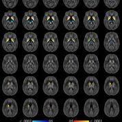 Imagen: Una técnica de resonancia magnética altamente exacta puede monitorizar los niveles de hierro en el cerebro de los pacientes con esclerosis múltiple (Fotografía cortesía de la RSNA).