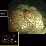 Imagen: Un nuevo estudio afirma que el diagnóstico asistido por computadora puede ayudar a identificar los pólipos cancerosos (Fotografía cortesía de Yuichi Mori / SUHY).