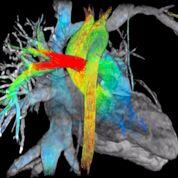 Imagen: Un estudio nuevo sugiere que la resonancia magnética cardíaca puede ayudar a detectar el lupus antes de que aparezcan los síntomas (Fotografía cortesía de GE Healthcare).
