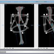 Imagen: El software de análisis radiográfico ayuda a corregir fracturas y deformidades complejas (Fotografía cortesía de AMDT Holdings).