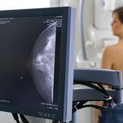 Imagen: El efecto beneficioso del cribado del cáncer de mama ya no se manifiesta, según un estudio nuevo (Fotografía cortesía de Getty Images).