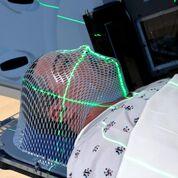 Imagen: Un agente protector nuevo reduce la inflamación severa en la cavidad oral después de la RT (Fotografía cortesía de iStock).