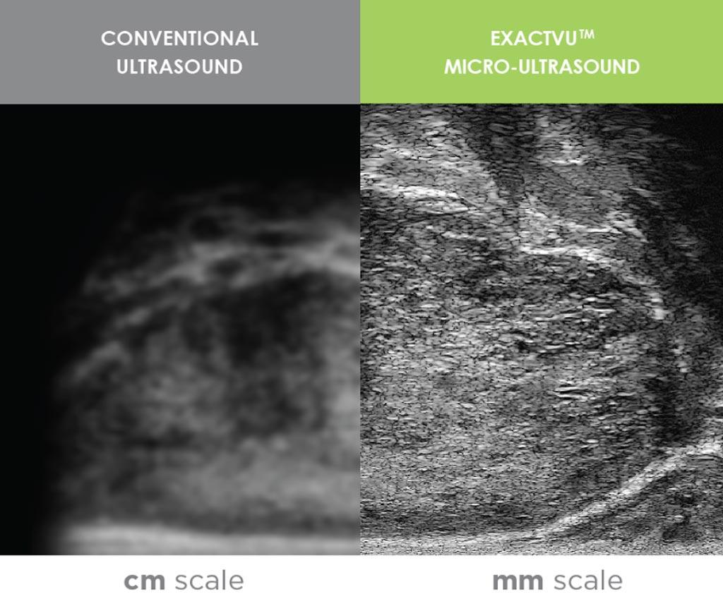 Imagen: Se está combinando una nueva técnica avanzada de imágenes de ultrasonido con inteligencia artificial para mejorar la detección del cáncer de próstata (Fotografía cortesía de Exact Imaging).