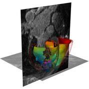 Imagen: Un corazón virtual simulado en 3D (Fotografía cortesía de la JHU).