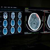 Imagen: Los algoritmos de IA coinciden con los radiólogos en la detección de patologías en las radiografías de tórax y en las TC (Fotografía cortesía de Qure.ai).