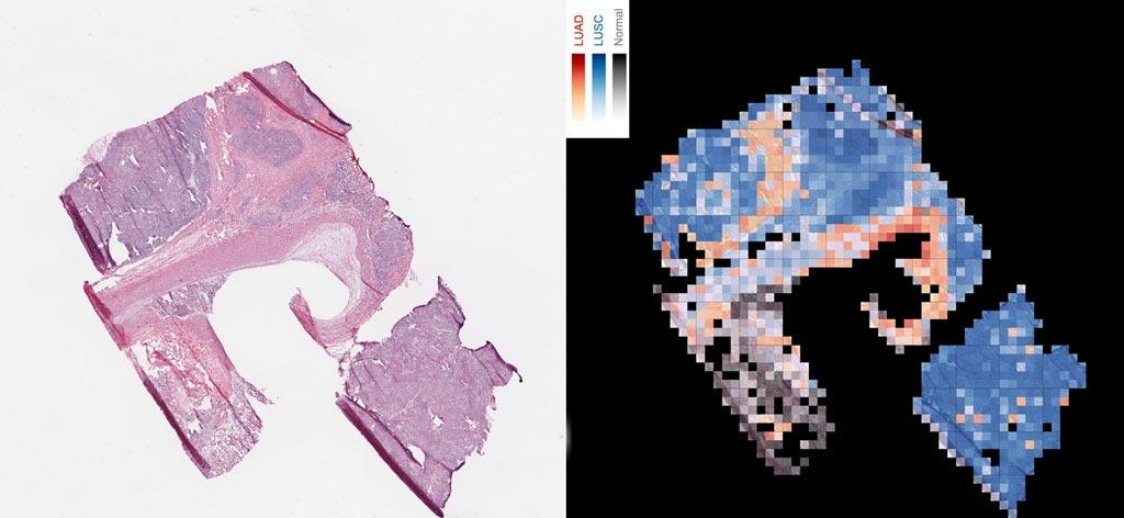 Imagen: Una herramienta de IA analiza una porción de tejido canceroso para crear un mapa que diferencia dos tipos de cáncer de pulmón, con el carcinoma escamocelular en rojo, el carcinoma escamocelulares de pulmón en azul y tejido normal de pulmón en gris (Fotografía cortesía de Cision).