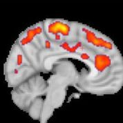 Imagen: La TEP resalta la activación glial aumentada en los pacientes con fibromialgia (Fotografía cortesía de Marco Loggia/MGH).