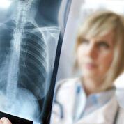 Imagen: Un estudio nuevo afirma que las radiografías de tórax pueden ayudar a limitar la terapia con antibióticos en caso de sospecha de neumonía (Fotografía cortesía de Alami).