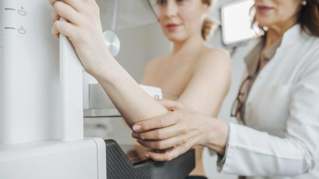 Imagen: Un estudio nuevo afirma que la inteligencia artificial (IA) puede ayudar a los radiólogos a diferenciar las mamografías falsas positivas de las mamografías malignas y negativas (Fotografía cortesía de iStock).