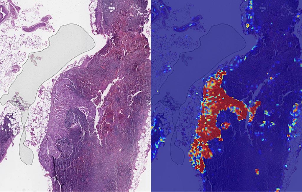 Imagen: Izquierda: vista de ejemplo de una lámina que contiene ganglios linfáticos, con múltiples artefactos: la zona oscura de la izquierda es una burbuja de aire, las rayas blancas son artefactos de corte, el tono rojo en algunas regiones son hemorragias (contienen sangre), el tejido es necrótico (en descomposición), y la calidad de procesamiento fue mala. Derecha: LYNA identifica la región tumoral en el centro (rojo) y clasifica correctamente las regiones circundantes cargadas de artefactos como no tumorales (azul) (Fotografía cortesía de Google AI).