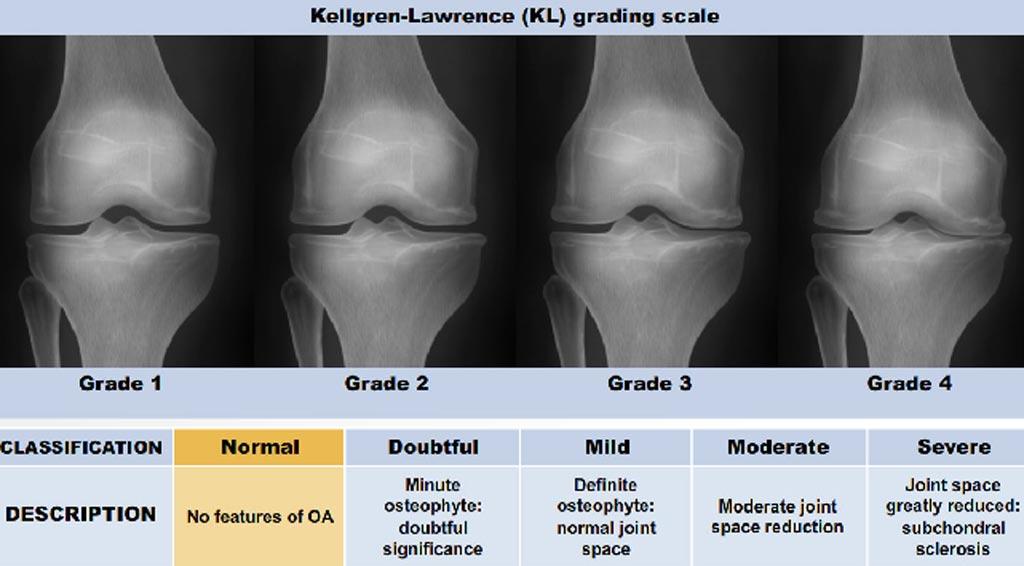 Imagen: El sistema de clasificación KL para evaluar la gravedad de la OA de rodilla. Un algoritmo nuevo de la UCSF ayudará a detectar la OA usando este sistema (Fotografía cortesía de la Universidad de California, San Francisco).