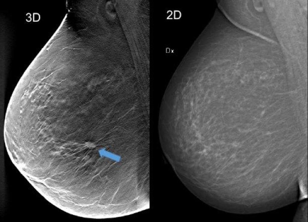 Imagen: Al utilizar la tomosíntesis de seno (cribado en 3D) en la imagen de la izquierda (una compuesta por aproximadamente 50 cortes finos de imágenes de corte transversal del seno), se puede ver un tumor de aproximadamente 1 cm que no es claramente visible en la imagen de la mamografía en la derecha, aunque el seno no contiene tejido particularmente denso (Fotografía cortesía del Hospital Universitario de Skåne en Malmö).