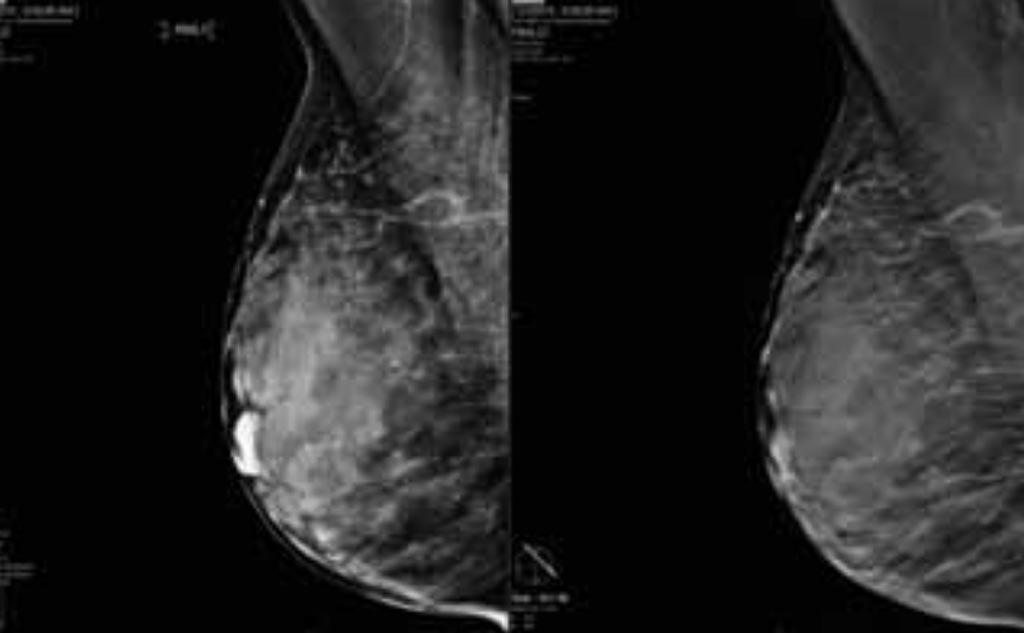 Imagen: Un estudio nuevo afirma que la inteligencia artificial utilizada con la mamografía 3D ofrece mejoras en el desempeño clínico y los tiempos de lectura (Fotografía cortesía de iCad).
