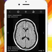 Imagen: una nueva aplicación permite ver imágenes médicas en un iPhone (Fotografía cortesía de Ambra Health).