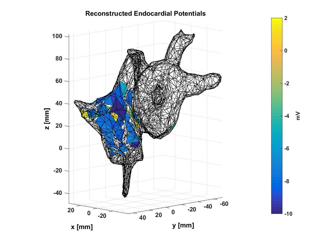 Imagen: los médicos pueden usar estos mapas no invasivos de potenciales electroquímicos dentro del corazón de un paciente para localizar la fuente de un ritmo cardíaco anormal (Fotografía cortesía de Abhejit Rajagopal).