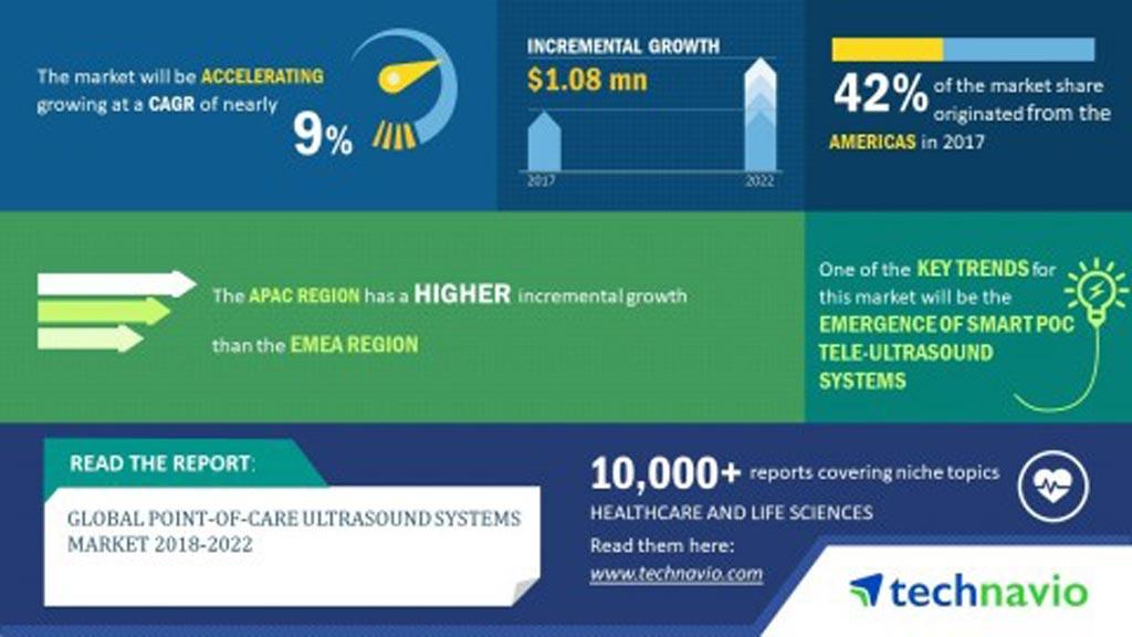 Imagen: Se proyecta que el mercado global de sistemas de ultrasonido POC crecerá casi un 9% durante el período 2018-2022 (Fotografía cortesía de Technavio Research).
