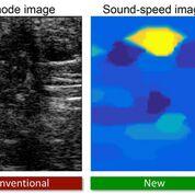 Imagen: La nueva técnica de ultrasonido muestra un tumor de mama en amarillo (Fotografía cortesía de Orçun Göksel/ETH).