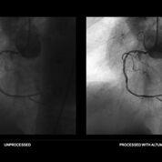 Imagen: El aprendizaje automático puede ayudar a mejorar las imágenes digitales de rayos X (Fotografía cortesía de ContextVision).