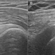 Imagen: A muestra el gradiente normal del músculo deltoides; B muestra reversión en un paciente con DM2. D: Deltoides, S: Supraespinoso, H: Húmero (Fotografía cortesía de RSNA).